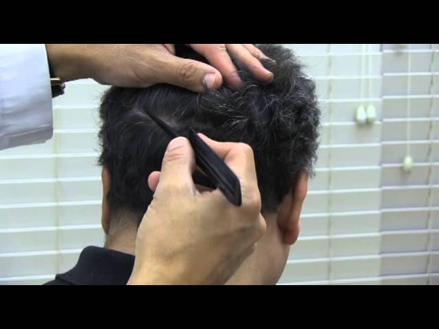 Hair Transplant Before & After Carlos Miller's seven month hair transplant update.