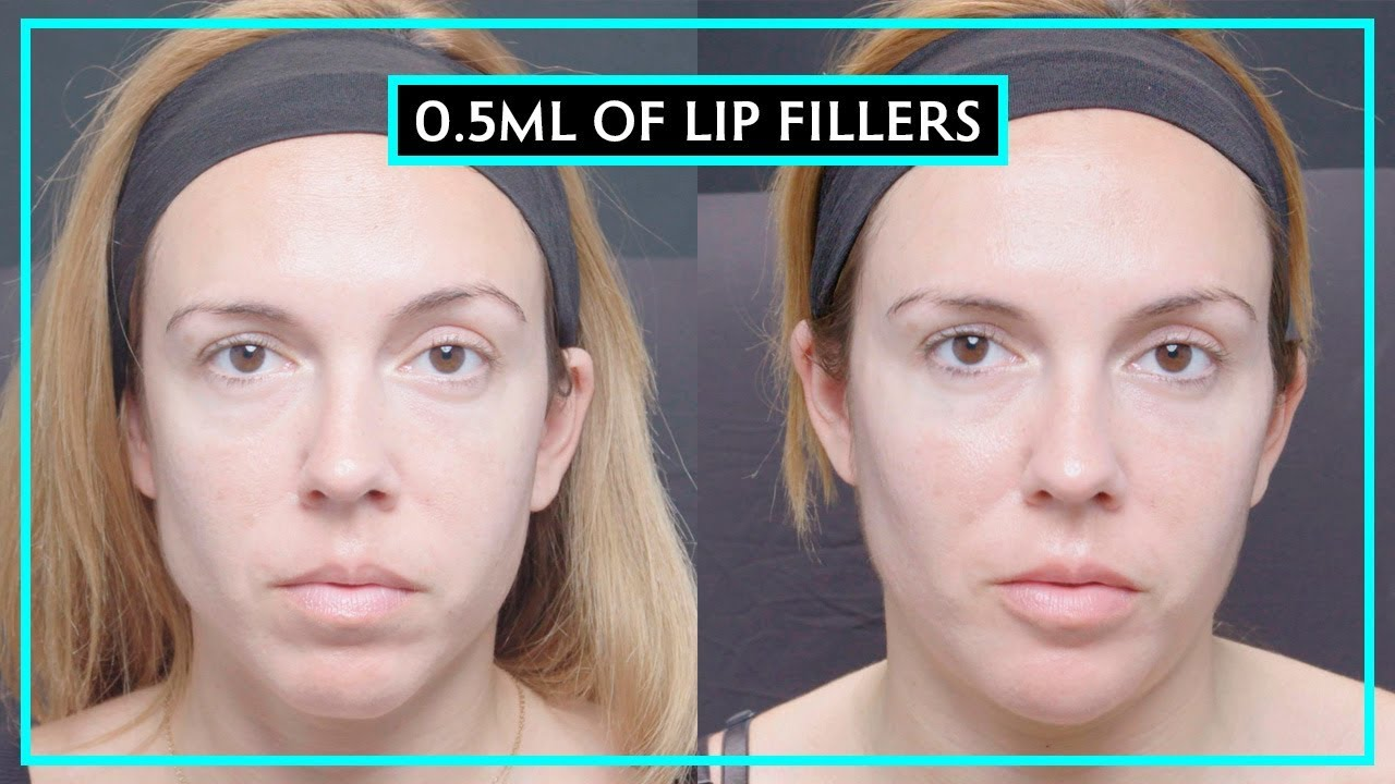How Much Difference Does 0 5ML Of Lip Fillers Make?