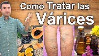 Salud seguro vitalidad varices de