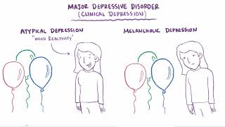 ... i found this video at: https://commons.wikimedia.org/wiki/file:depression_video.web...