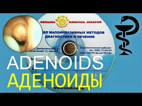 Аденоиды второй степени: удаление неизбежно?