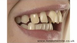 Cosmetic Dental Surgery - London Smile Dental Practice W1