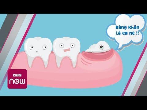 Răng khôn: Những nguy hiểm khôn lường