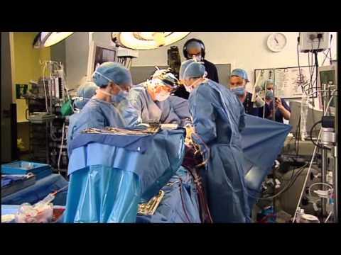 Open Heart Surgery Live