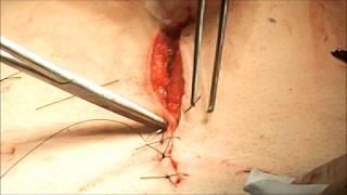 fermeture de la peau (les points de sutures )