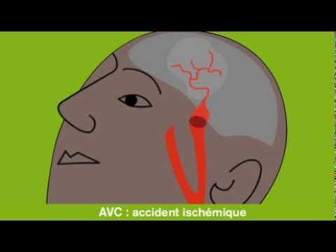 Accident vasculaire cérébral ischémique (AVC) - YouTube