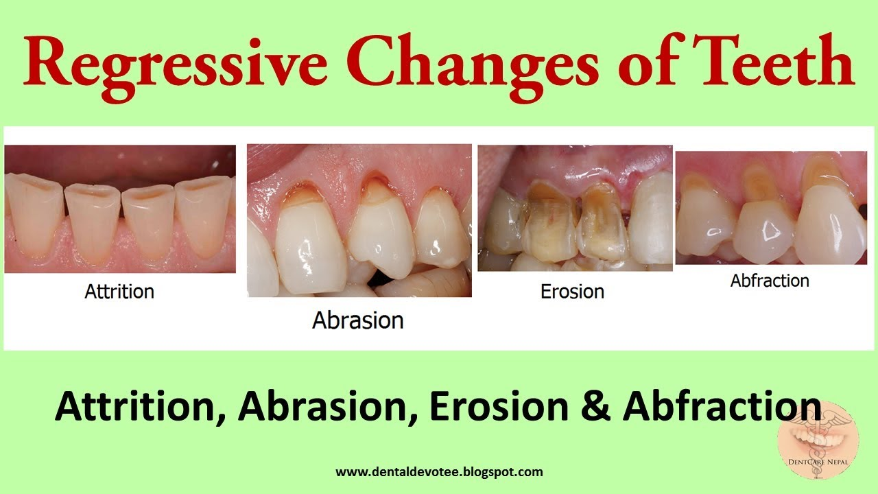 regressive changes of tooth attrition abrasion