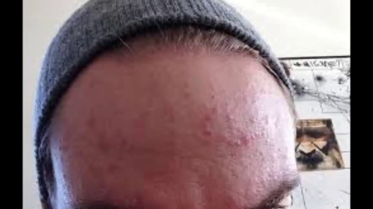 lesions on face - Acne - MedHelp