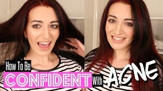 How To Be CONFIDENT When You Have ACNE! Be Inspired & Motivated To Succeed! Thumbnail