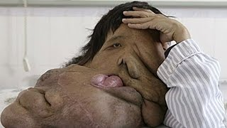 China's Elephant Man Documentary