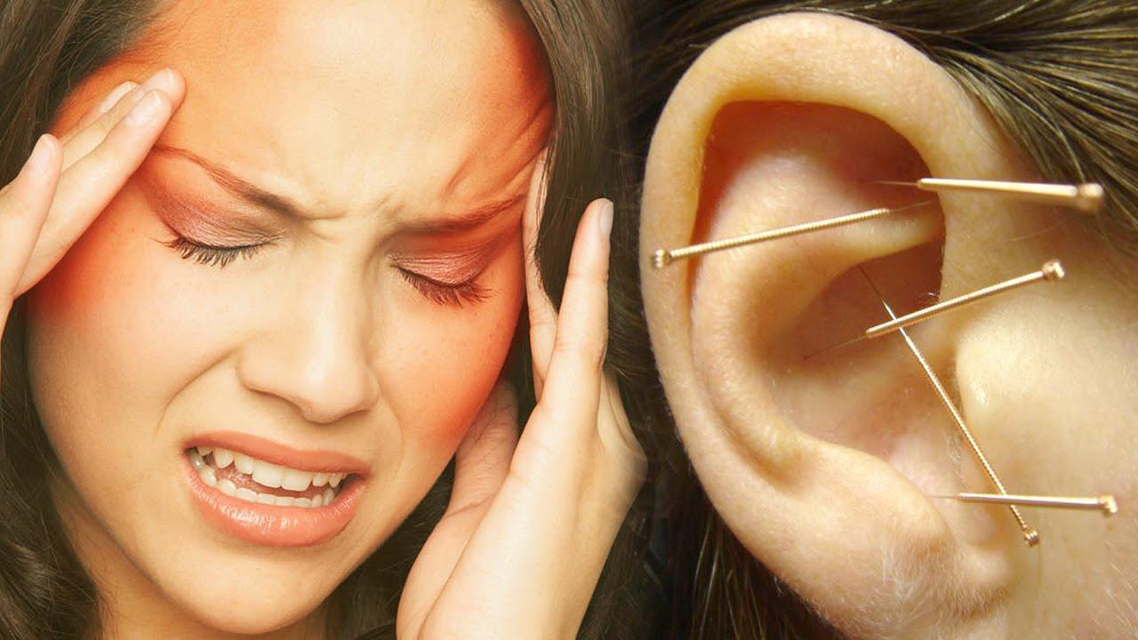 puntos en la oreja para dolor de cabeza