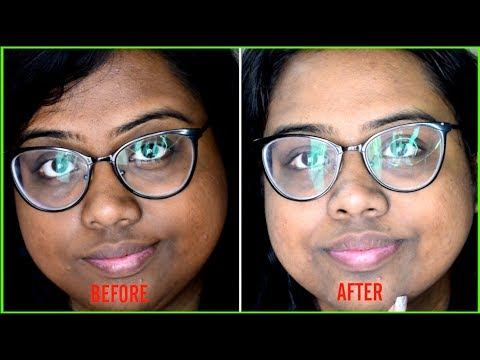 SUN TAN REMOVAL MAGICAL HOME REMEDIES | HOW TO REMOVE SUN TAN INSTANTLY | सन टैन के घरेलू उपचार
