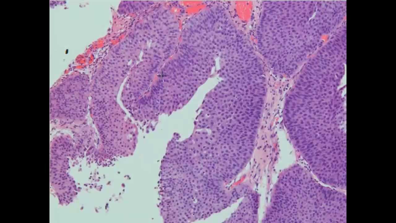 urothelialis papilloma patológia körvonalai