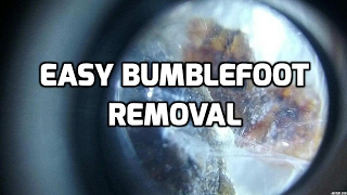 Easy non-surgical removal of bumblefoot on chicken