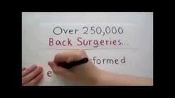 "Chiropractic Cocoa Beach Florida: ""250000 Back Surgeries"" Chiropractor Cocoa Beach Florida"