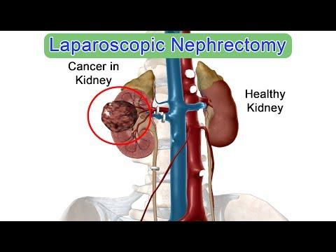 Laparoscopic Left Radical Nephrectomy by Dr Anshuman ...