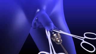 Penis - Circumcision - 3D Medical Animation || ABP ©