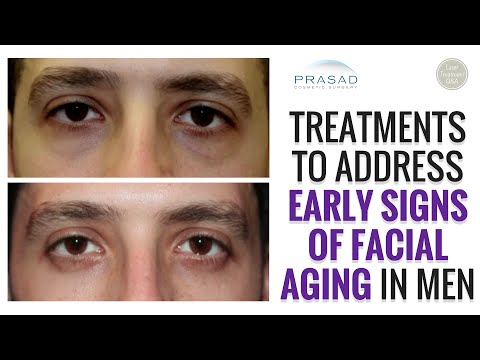 Addressing and Preventing Early Signs of Facial Aging in Men