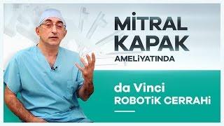 ''da Vinci Robotik Cerrahi'' Sistemi ile Mitral Kapak Ameliyati Nasıl Yapılır? - Prof. Dr. Cem Alhan