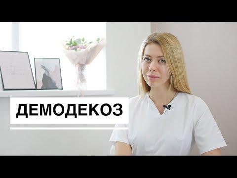 Демодекоз, подкожный клещ