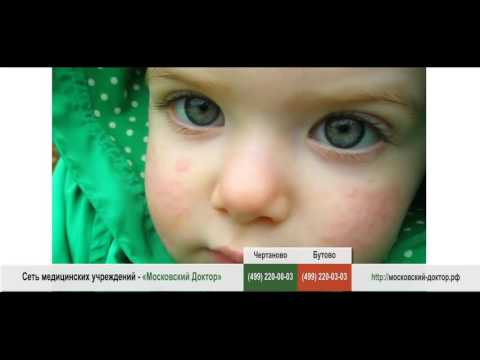 Аллергия на щеках у ребенка, у взрослого