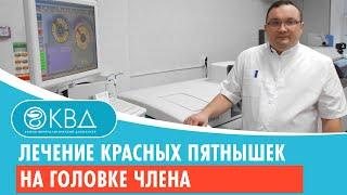 Фото 💉 💊 Лечение красных пятнышек на головке члена  Клинический случай №369