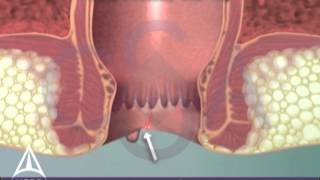 Anal Fissure - 3D Medical Animation