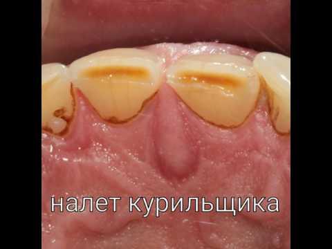 Гигиена полости рта, налет курильщика