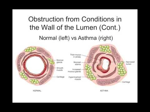 Chapter 22 Obstructive Pulmonary Disorders BIOL300