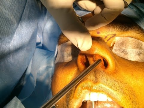 Nasal Septal Reconstruction And Tip Plasty - Dr Paulose FRCS (ENT)