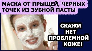 Уход за кожей лица Маска для лица от прыщей черных точек из зубной пасты