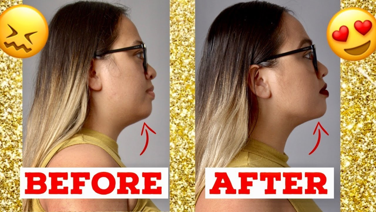 Double Chin Gone Chin Lipo Before And After Chin Lipo Update Review Youtube