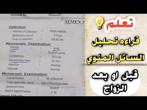 تعلم قراءه تحليل السائل المنوي كالمحترفين Read The Semen Test Youtube