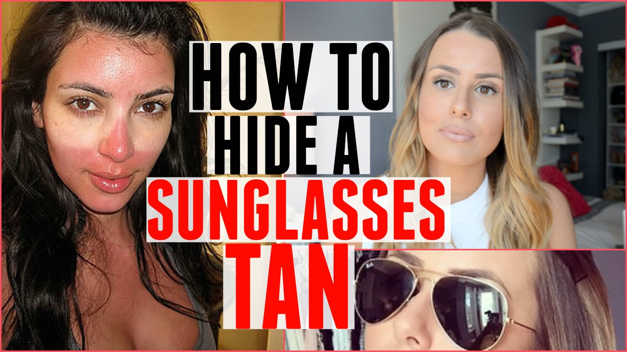 How to sunburn a disguise recommendations to wear for winter in 2019