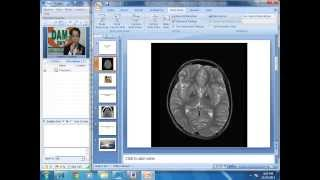 Radiology Spotters Part-1
