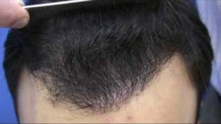 Dr Hasson Hair Transplant Video - 3360 Grafts - 1 Session