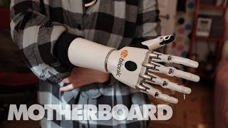 Living With Future Prosthetics