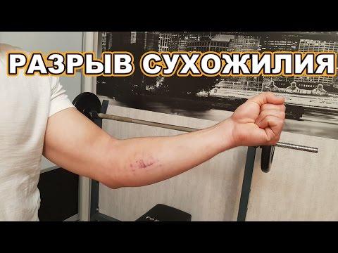 Как лечить разрыв мышцы руки