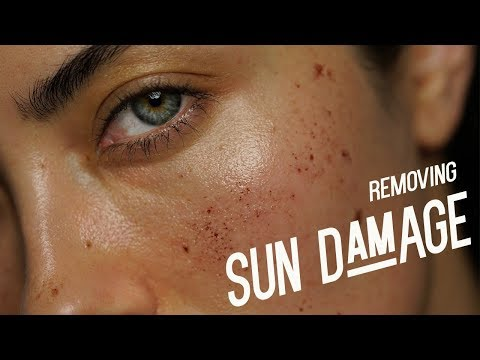 Removing Dark Spots/Sun Spots | IPL Treatment VLOG | Melissa Alatorre