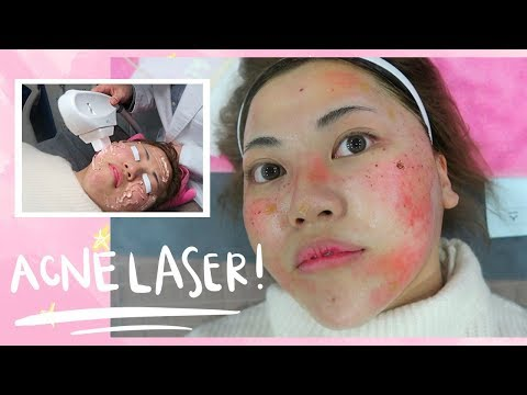 Painful ACNE LASER Experience in Korea...