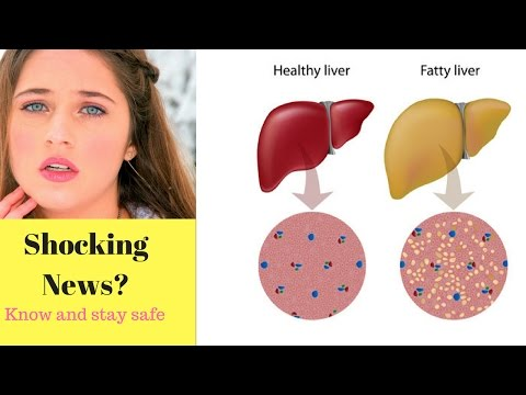 Top 6 Warning Signs Show That Your Liver is Full of Toxins || US PEOPLE MUST WATCH