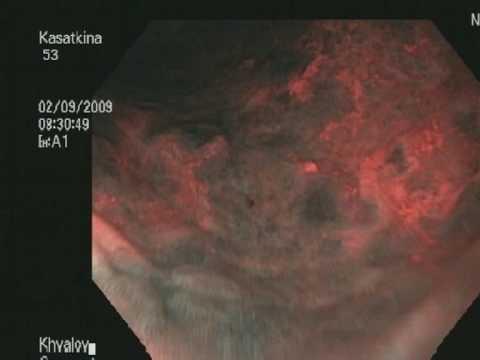 Кишечная метаплазия слизистой оболочки желудка.
