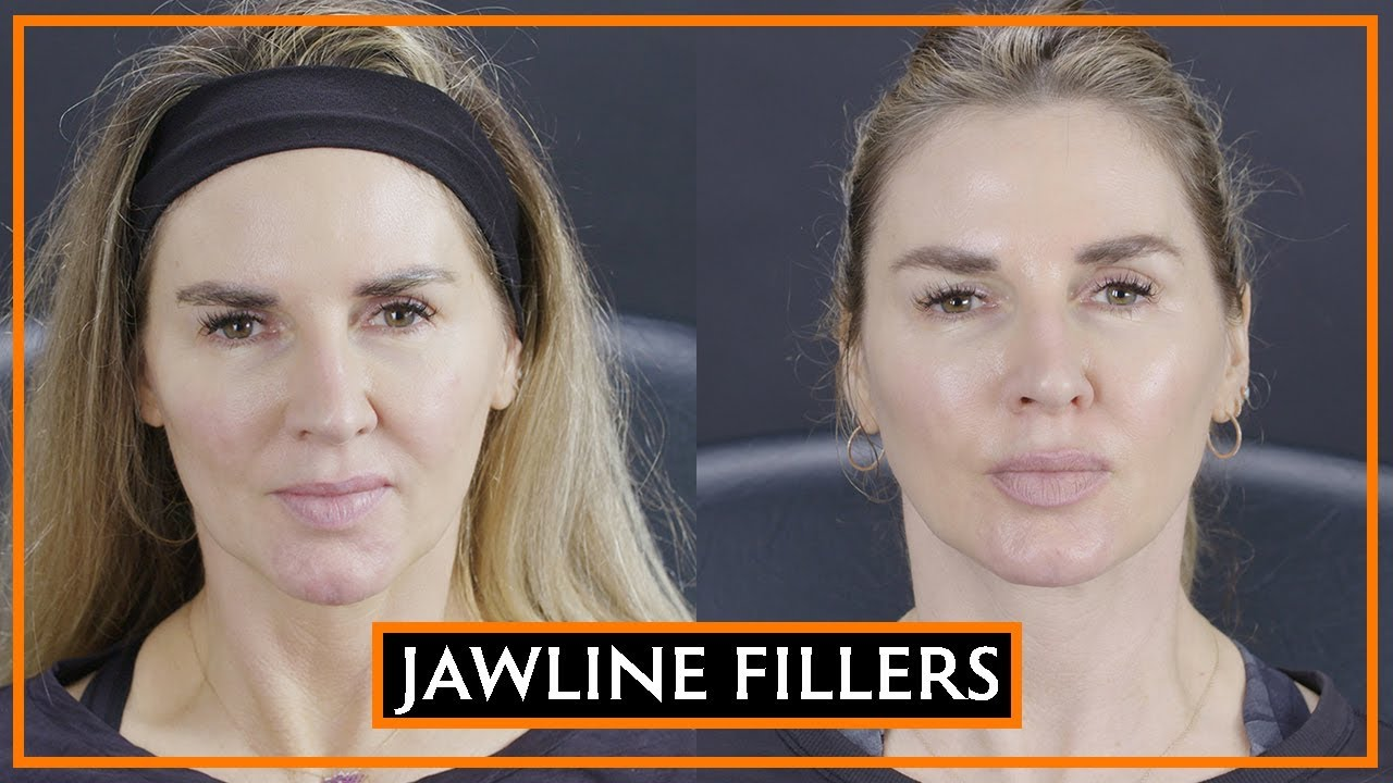 How The Jawline Can Be Defined With Fillers