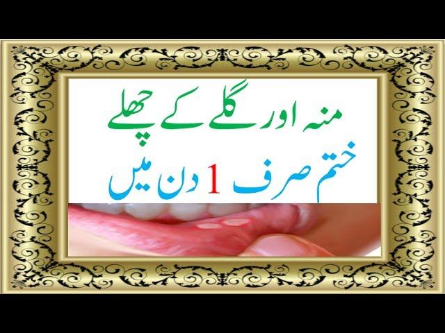 Health Tips in Urdu Moun Ke Chale Khatam Karne Ka Gharelu Totka gale ke chale