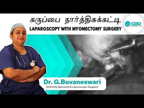 laparoscopy-with-myomectomy-surgery-|-கருப்பை-நார்த்திசுக்கட்டி-|-dr-g-buvaneswari,-gbr-clinic