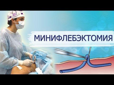 Минифлебэктомия. Варикоз ног, варикоз рук, варикоз промежности - лечение.