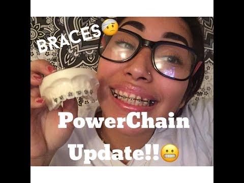 Custom BRACKETS!!+UPDATE!!!  BRACES