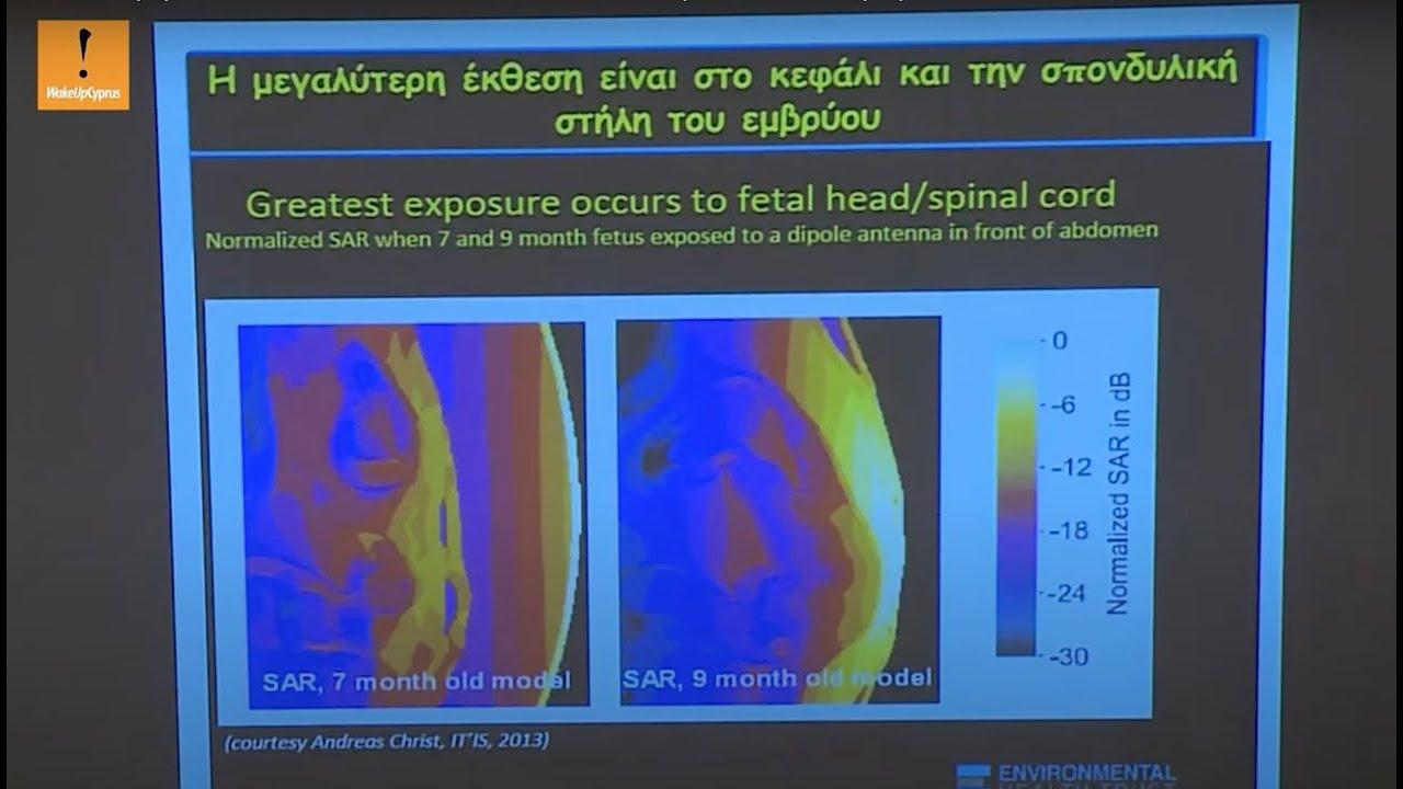 5G Ακτινοβολία και επιδράσεις στο έμβρυο