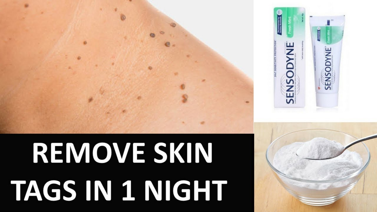 Remove Skin Tags In 1 Night With Toothpaste Youtube