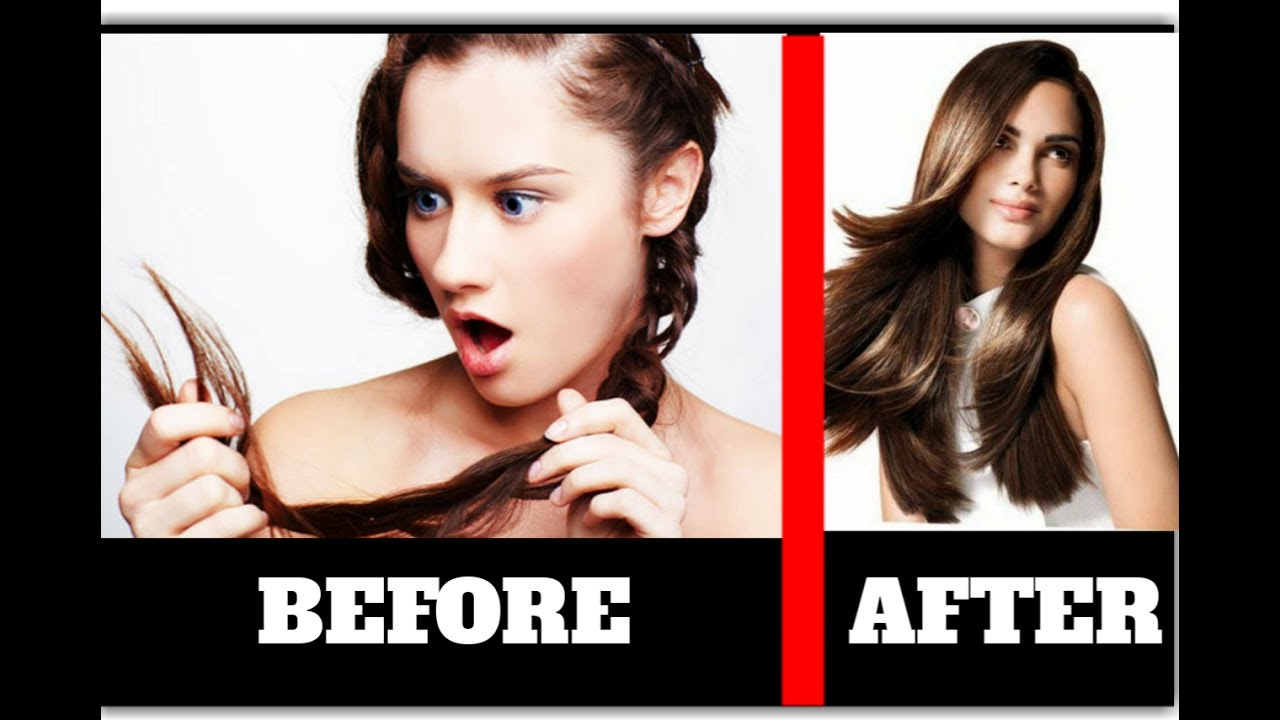 how to get rid of hair fall permanently